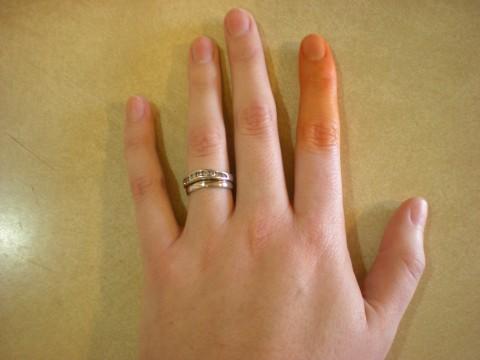 dyed finger